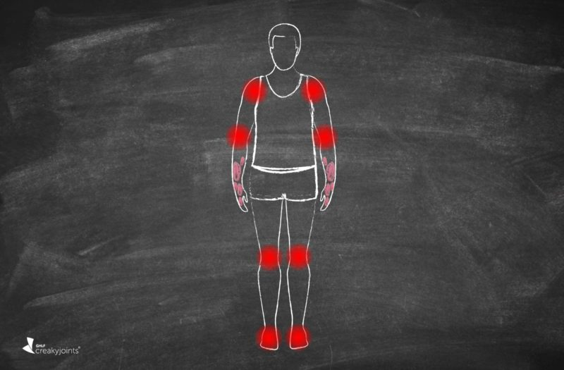 Psoriatic Arthritis Skin and Joint Symptoms