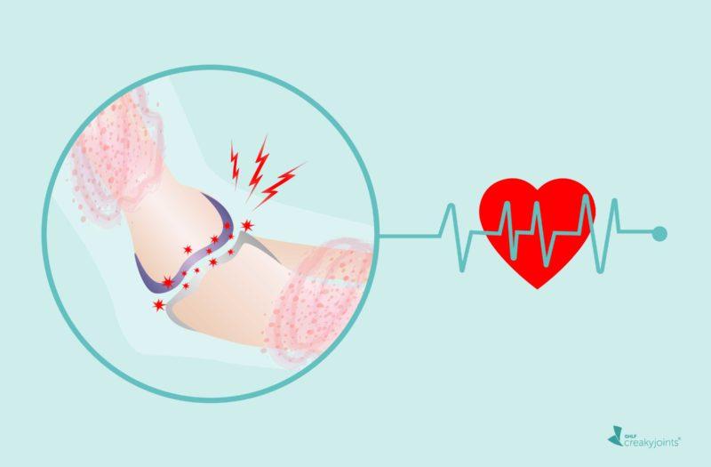 Heart Cardiovascular Disease Psoriatic Arthritis