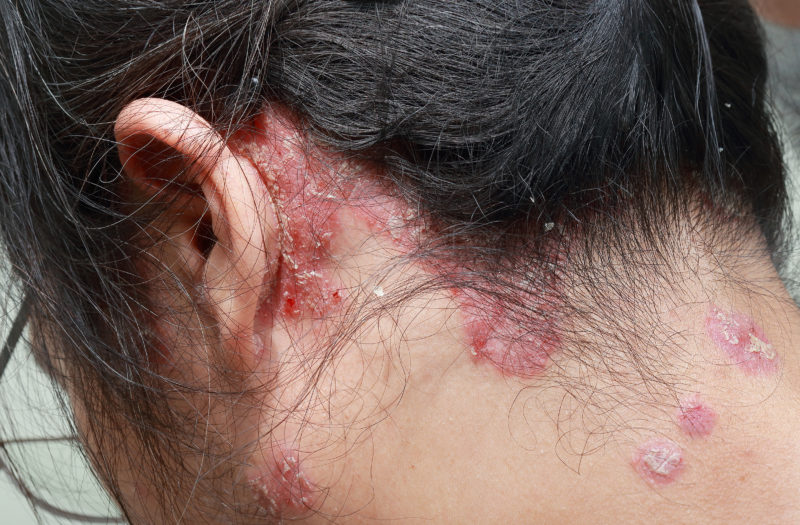Psoriasis Psoriatic Arthritis Hair Loss