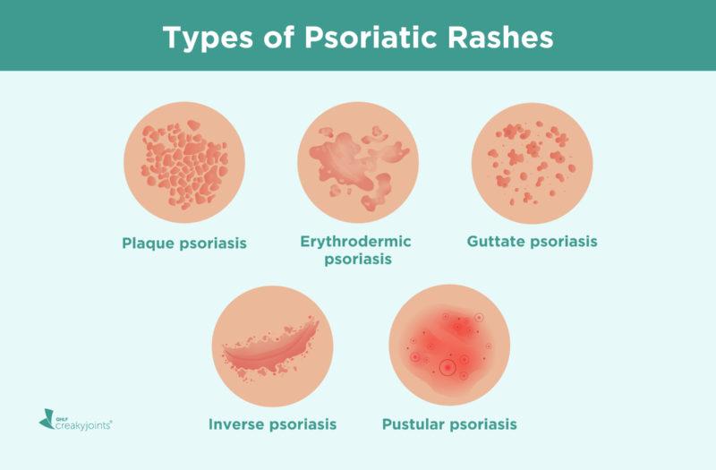 Psoriatic Arthritis Psoriasis Rashes