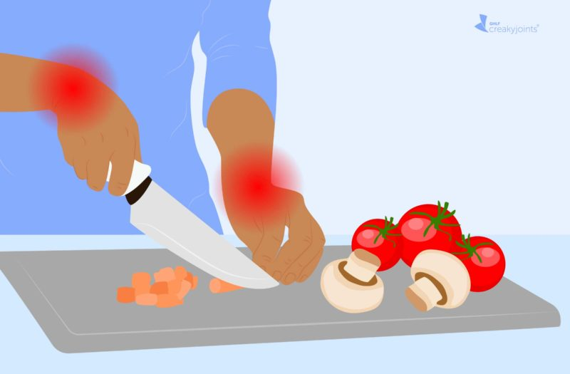 An illustration of a hand inflicted with arthritis, as indicated by red pain spots on the wrist and fingers, chopping vegetables at a counter with a towel wrapped around the handle of the knife.