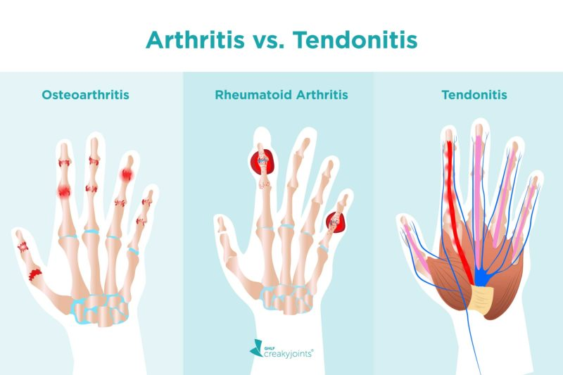 """An illustration of three hands. On the left is a hand with red, inflamed joints. Above the hand is the word """"Osteoarthritis."""" In the middle is a hand with red, inflamed joints and red nodules. Above the hand is the word """"Rheumatoid Arthritis."""" On the right is a hand with red, inflamed tendons. Above the hand is the word """"Tendonitis."""""""