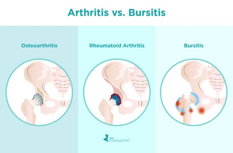 """A side-by-side-by-side illustration of three hips. The top of the image reads """"Arthritis vs. Bursitis"""" The hip on the left is affected by osteoarthritis. Above the hip is written """"Osteoarthritis"""" The image shows narrow joint space between the socket and cartilage, worn down cartilage (which are illustrated with red cracks on the cartilage), and bone spurs (which are illustrated with small bulging circle on the bone beneath the cartilage). The hip in the middle is affected by rheumatoid arthritis. Above the hip ia written """"Rheumatoid Arthritis"""" The image shows an inflamed, red joint, which is located in the area between the femoral head and socket. The hip on the right is affected by bursitis. Above the hip is written """"Bursitis"""" The image shows an inflamed, red bursa, which is a sack located on the outside of the femur."""