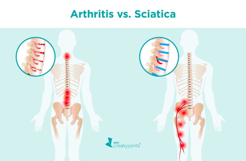 """A side-by-side of two spines. On the top, the words """"Arthritis vs. Sciatica."""" The back/spine on the left is affected by arthritis. The image shows worn down cartilage (which is illustrated with red cracks on the cartilage), and inflammation to the spinal nerves and discs (which is illustrated with red pain spots). The back/spine on the right is affected by sciatica. The image shows inflammation where the sciatica nerve meets the piriformis muscle, and radiate down the rest of the nerve. There is also a herniated disc (a disc that is pushed further in than others)."""